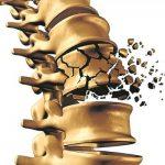 Hoy, Día Mundial de la Osteoporosis