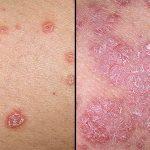Psoriasis: síntomas y cómo cuidar la piel